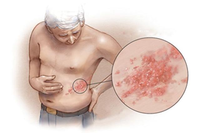 贺普仁:针灸治疗皮肤病